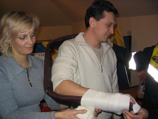 Иммобилизация перелома плечевой кости с помощью шины Крамера